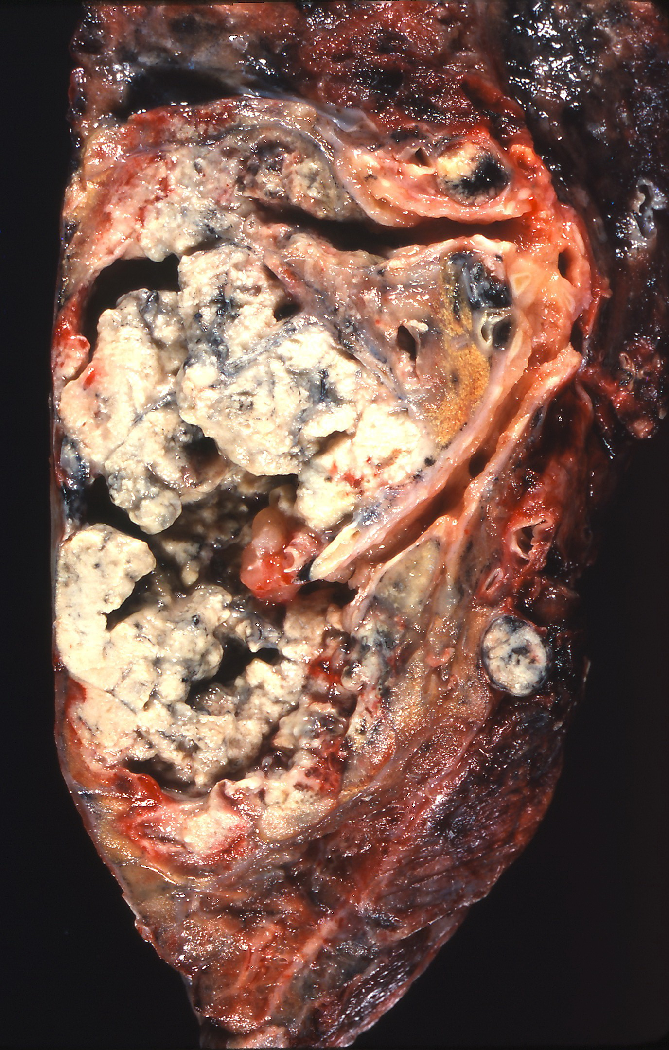 Squamous Cell Carcinoma Stage 4 Lung Cancer